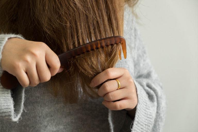 síndrome do cabelo impenteável