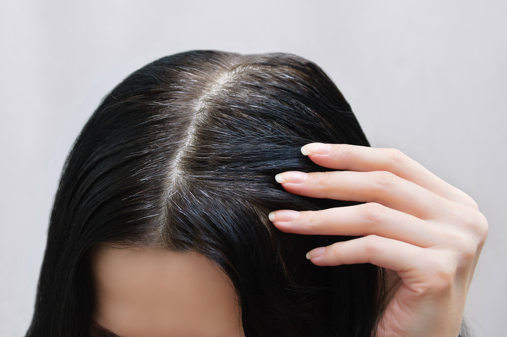 Qual é a relação entre unhas fracas e queda de cabelo?